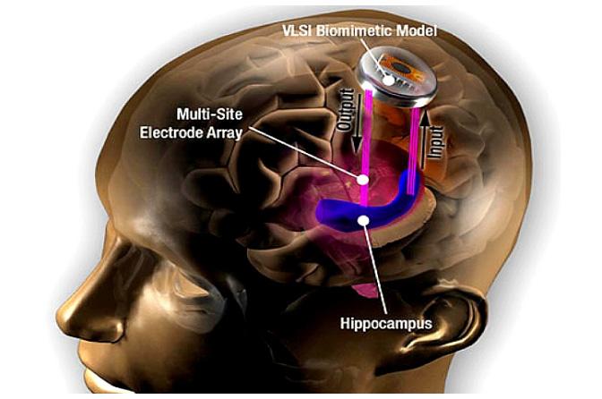 brain-implant-hippocampus-usc